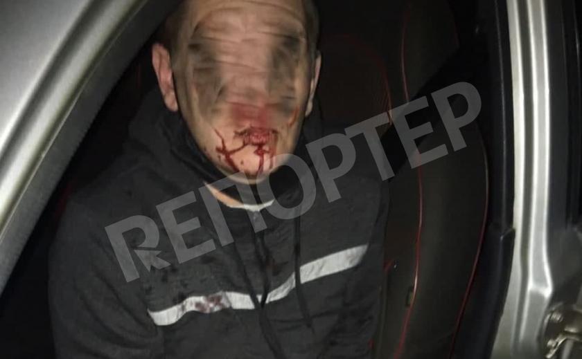 Когда «зайцы» стреляют. Опасная работа таксиста в Кривом Роге